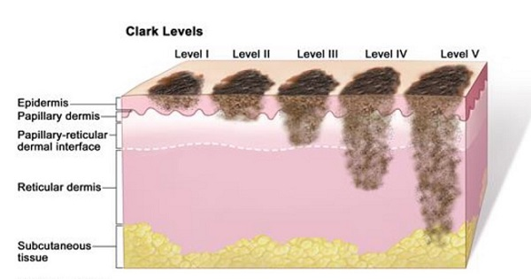 melanoma stages