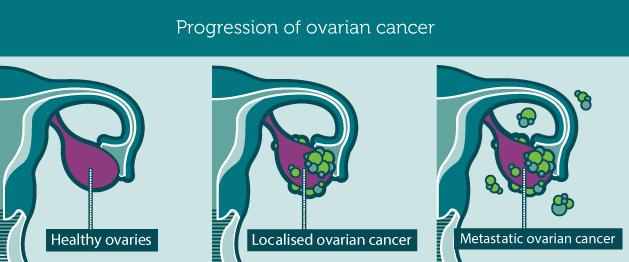 progression of ovarian cancer