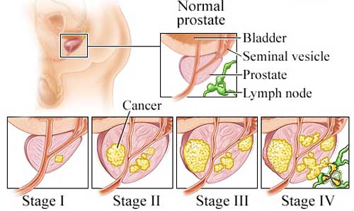 prostate cancer metastasis