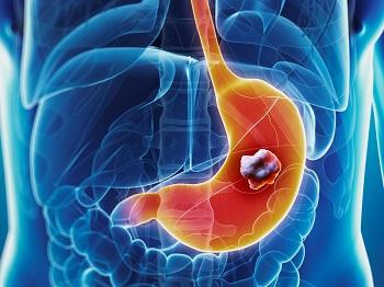 stomachcancer
