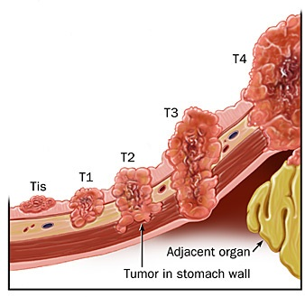 stagesofstomach cancer