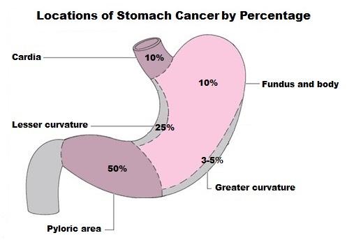 stomachcancerlocalization