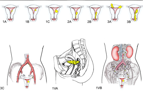 uterine cancer stages