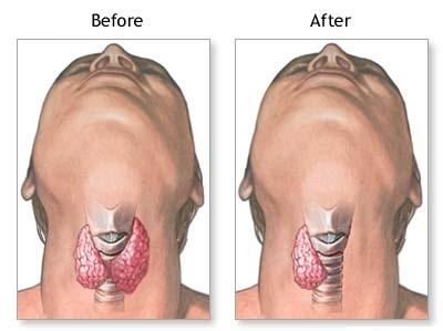 thyroid cancer surgery